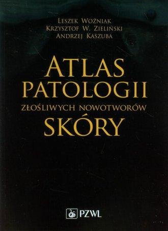 Atlas patologii złośliwych nowotworów - okładka książki
