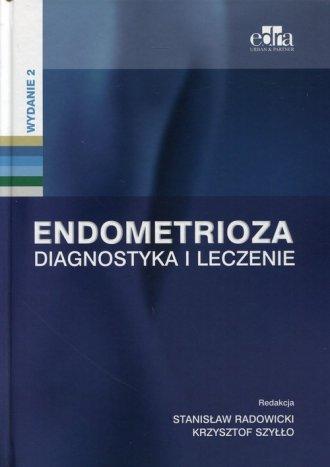 Endometrioza. Diagnostyka i leczenie - okładka książki