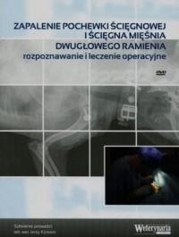 Zapalenie pochewki ścięgnowej iścięgna mięśnia dwugłowego ramienia. rozpoznawanie i leczenie operacyjne - okładka filmu