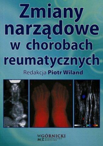 Zmiany narządowe w chorobach reumatycznych - okładka książki