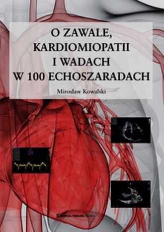O zawale kardiomiopatii i wadach - okładka książki