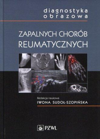 Diagnostyka obrazowa zapalnych - okładka książki
