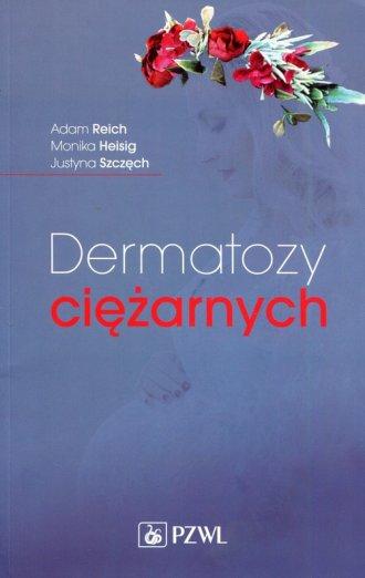 Dermatozy ciężarnych - okładka książki