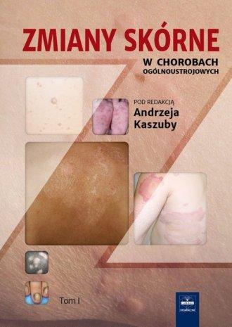 Zmiany skórne w chorobach ogólnoustrojowych. - okładka książki