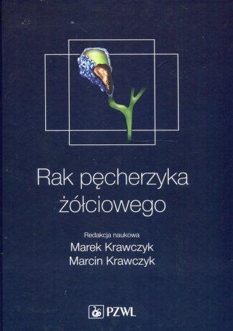Rak pęcherzyka żółciowego - okładka książki