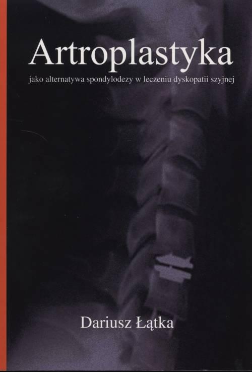 Artroplastyka jako alternatywa - okładka książki