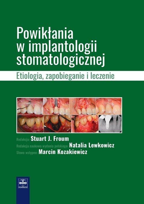 Powikłania w implantologii stomatologicznej. - okładka książki