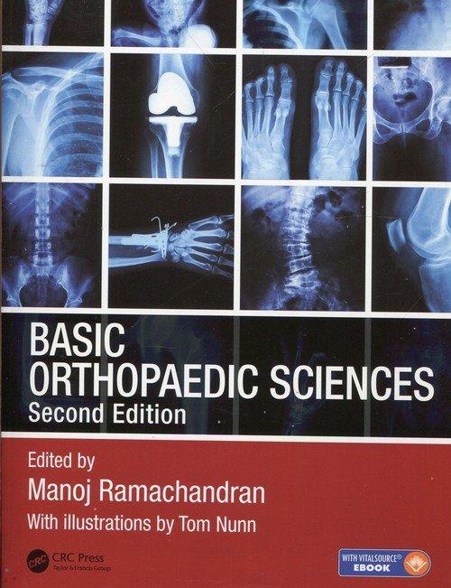 Basic Orthopaedic Sciences - okładka książki