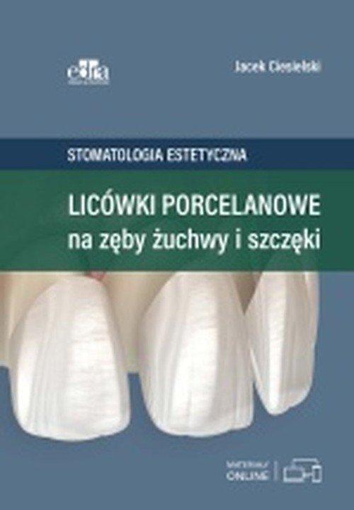 Licówki porcelanowe na zęby, żuchwy - okładka książki