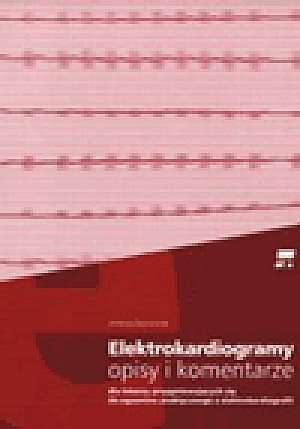 Elektrokardiogramy. Opisy i komentarze. Dla lekarzy przygotowujących się do egzaminu praktycznego z elektrokardiografii